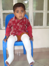Ashik (post treatment)