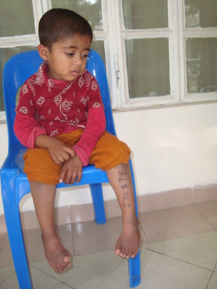 Ashik (pre treatment)