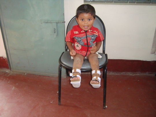 Nahid (post treatment)