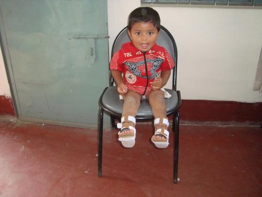 Nahid (post treatment)