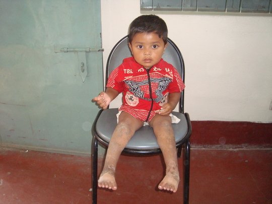 Nahid (pre treatment)