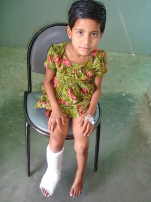 Urmi (post treatment)