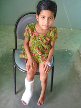Urmi (post treatment)