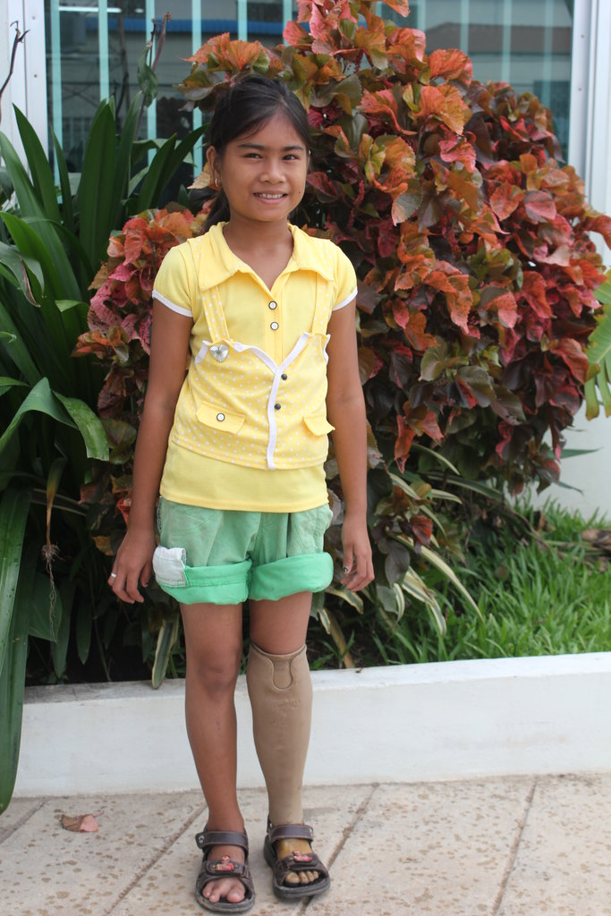 Give 40 Children in Asia the Ability to Walk!