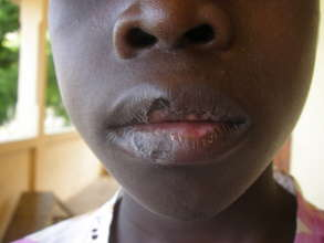 Boy with chronic mouth infection