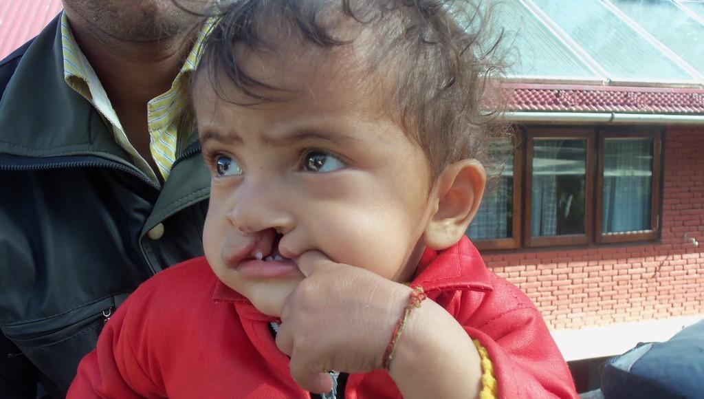 Pankaj with cleft lip and palate
