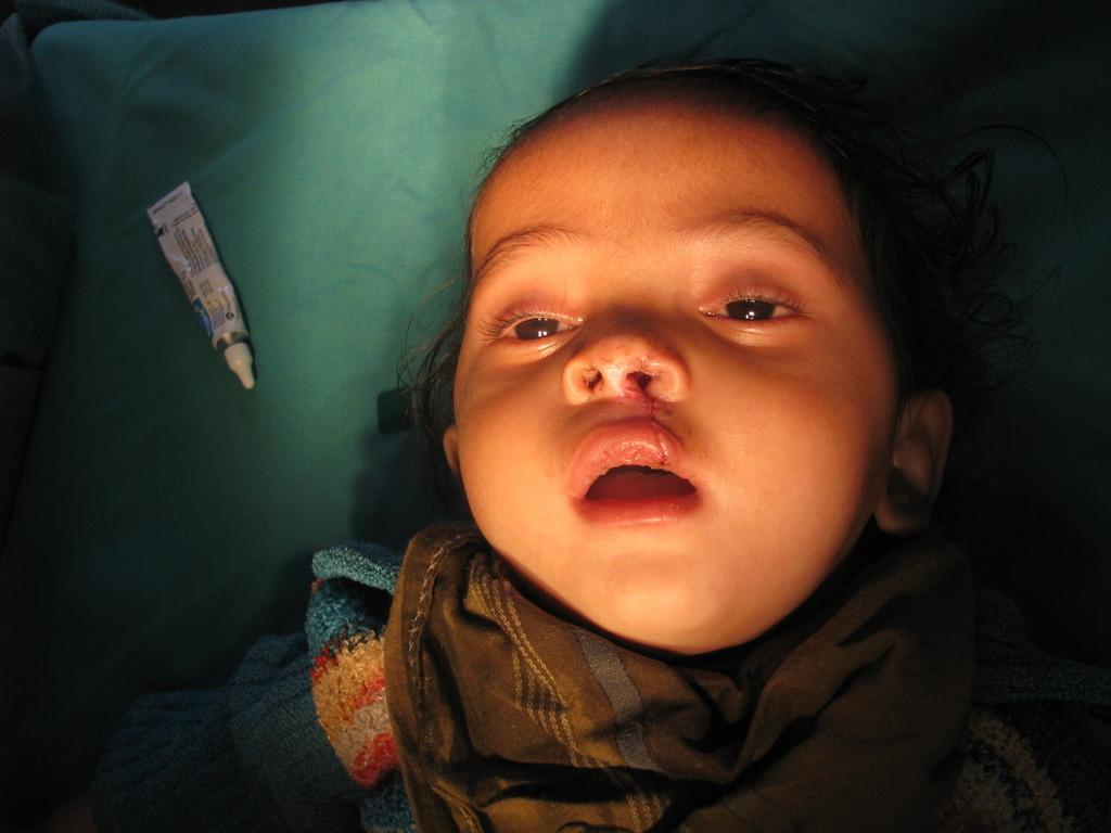 Pankaj after surgery at an Aarohi camp