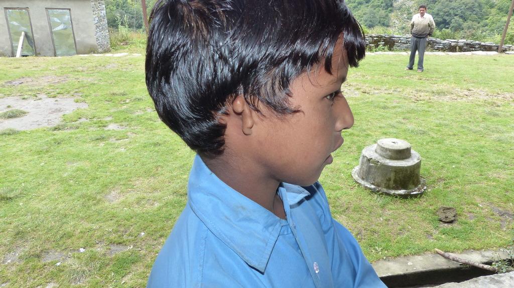 Manoj Ram of Wacham with unformed ear.
