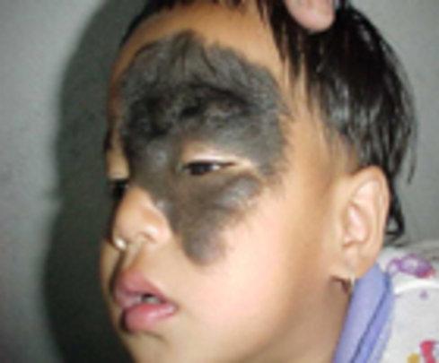 Large facial mole...