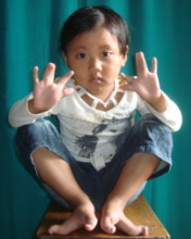 Dipa 5yo girl with Syndactyly