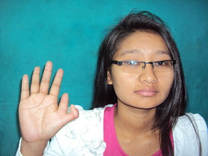 17 year old girl with polydactyly