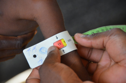A child is measured for severe acute malnutrition