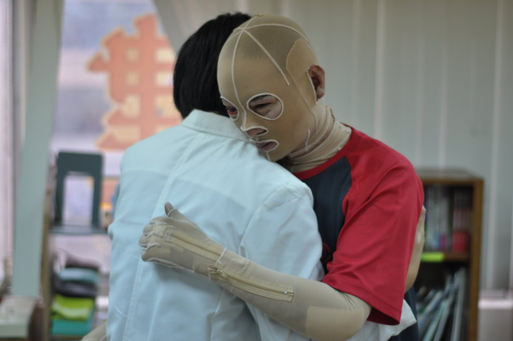 Rehabilitation for burn survivors in Taiwan