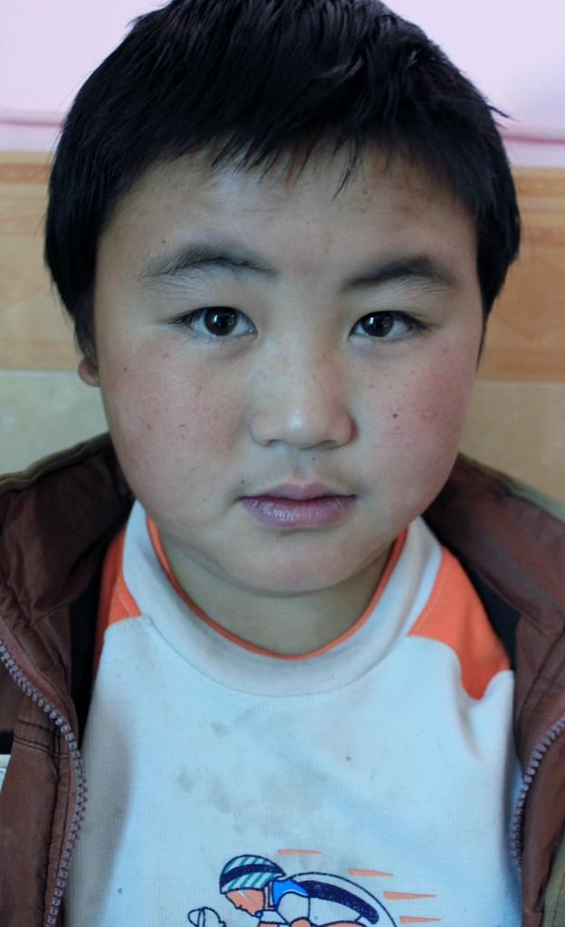 Ding De Peng before his surgery