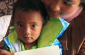 Cure child heart disease in Yunnan Province, China