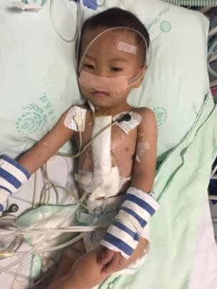 One of 33 children whose life was saved.