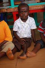 Waiting to be seen in the clubfoot clinic