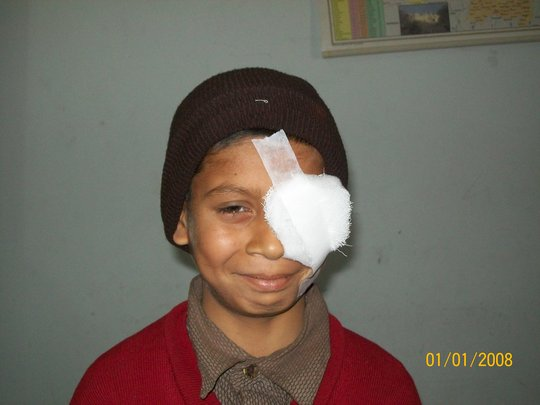 Child operated for low vision
