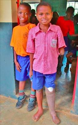 Amos just got a new prosthetic leg!