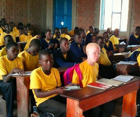This student with albinism can now go to school.