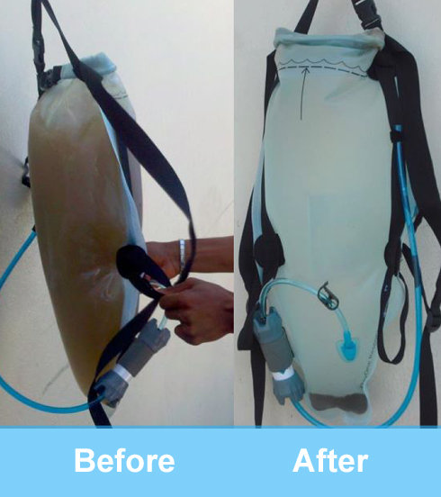 DayOne Waterbag, Before and After Treatment