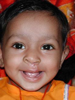 Anu, age 2, after