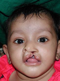 Anu, age 2, before
