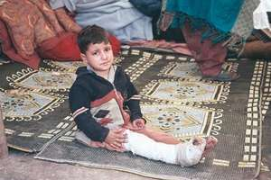 Injured child