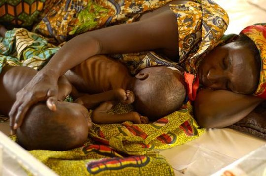 Treating Global Childhood Malnutrition