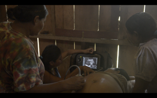 A partera using the ultrasound on a pregnant women