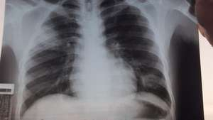 Tuberculosis ball in one of patient's lungs
