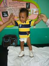 Support Clubfoot Treatment for 270 Children