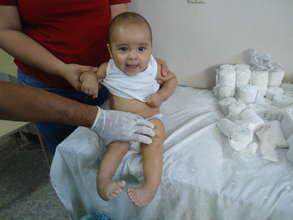 Silvio before treatment.