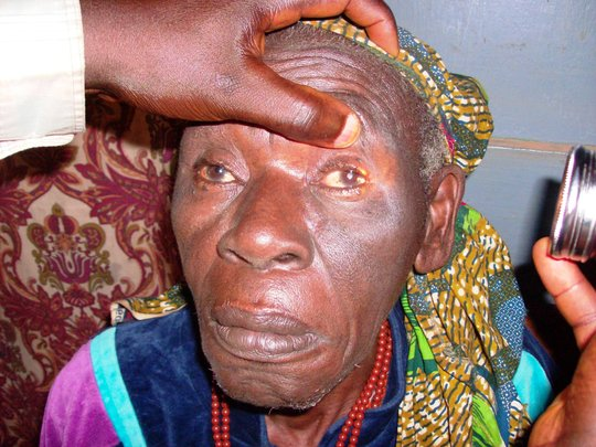 Prevent Blindness-Fund Cataract Surgeries Cameroon