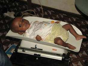 Child being weighed a the AAO clinic