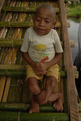 Inle Lake Child with Soft Bone Condition