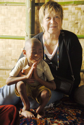 Inle Lake Child with Softbone Disease