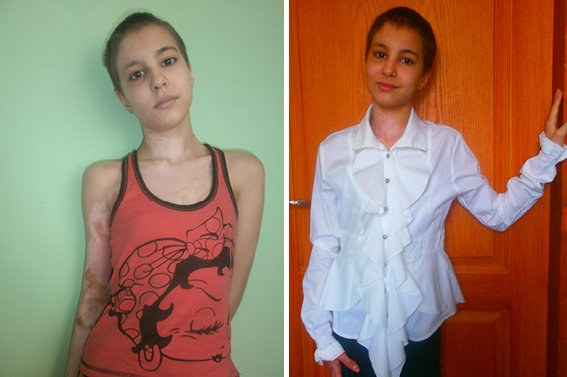 Vita post-hospital in July & before school in Sept
