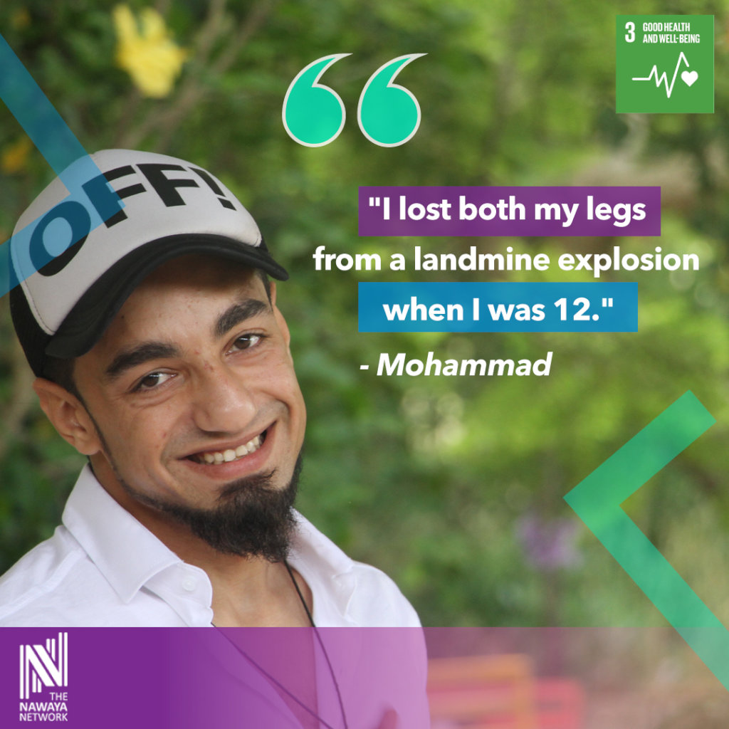 Mohammad, on the loss of his legs.
