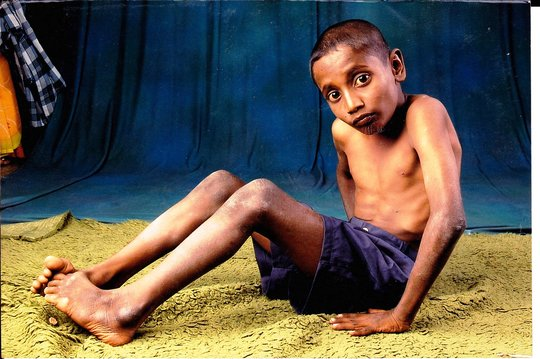 support-poor-needy-handicapped-orphans-indian