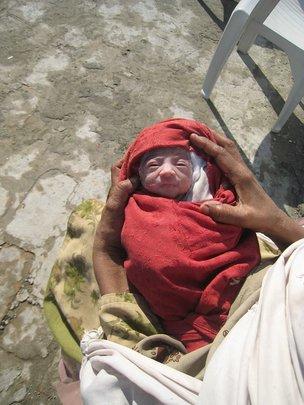Newborn Baby in HDF's Mardan Health Center