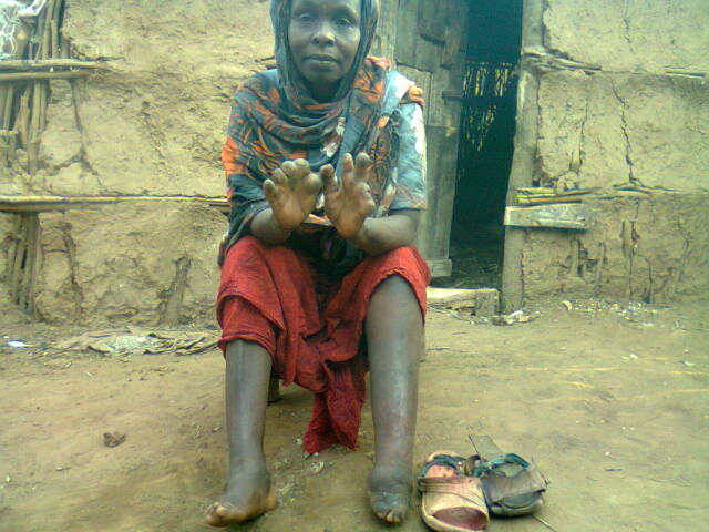 Touch the Lives of People with Leprosy in Somalia