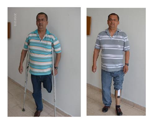 Ramiro wishes to walk again