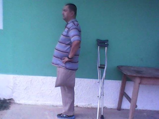 Ramiro wishes to recover the ability to walk