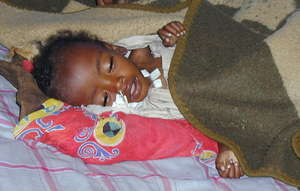 Babies in Darfur are severely malnourished