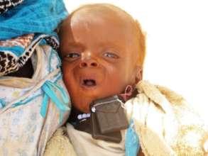 Darfur children are suffering serious malnutrition