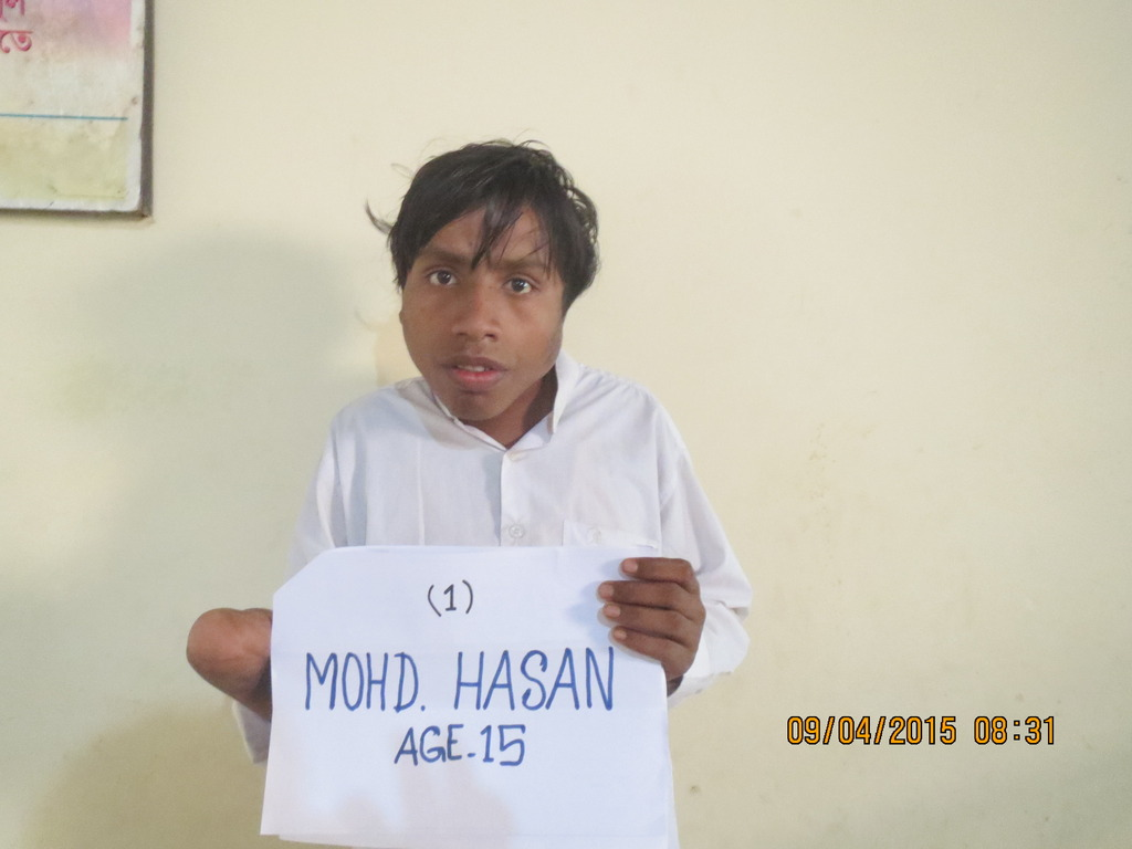 Mohammad, Burn Patient at HOPE Hospital