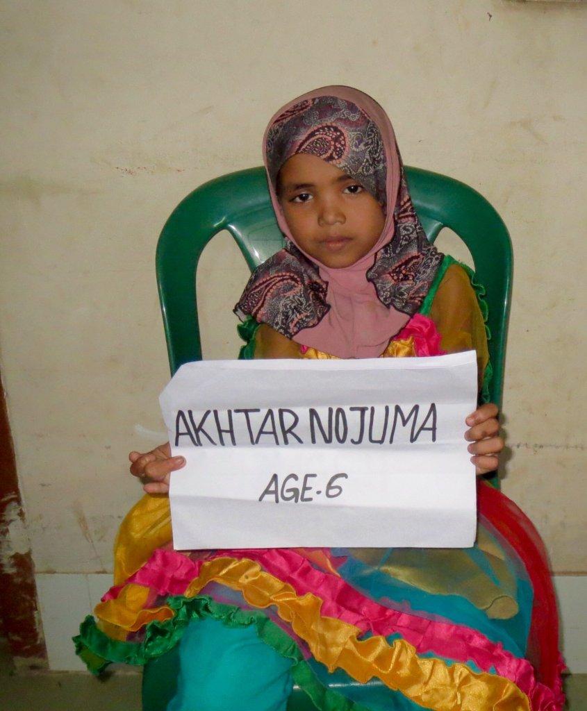 Nojuma, a 6 yr old patient