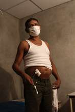 CKDu patient showing his PD catheter