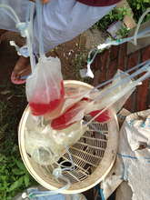 Dialysis drainage bags, filled with blood